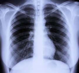 10-26-11-chest-x-ray-istock_000008877460xsmall1